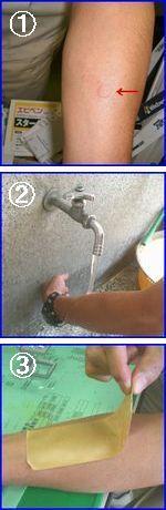 刺されたときの対処の写真。水道で洗い流すときは、はじめはゆっくりと少しずつ強めに流します。