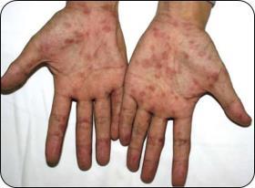 梅毒疹(バラ疹)写真