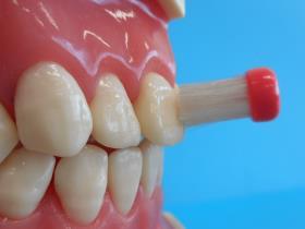 歯ブラシを歯の面に対して垂直に当てている写真