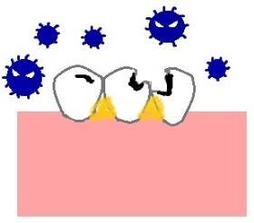 再石灰化が追いつかずむし歯になる