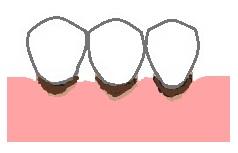 歯ぐきが下がったところからむし歯になる根面う蝕